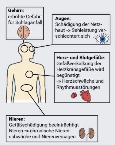 koks kraujospūdis gali būti laikomas hipertenzijos požymiu)